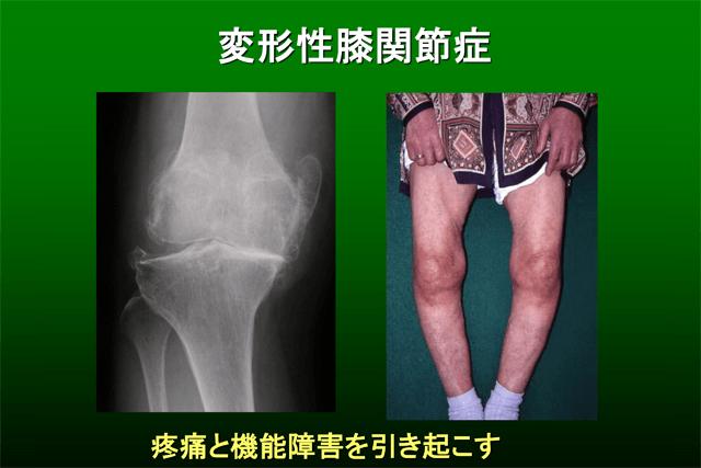 膝の痛みで最初にやるべきは「運動療法」