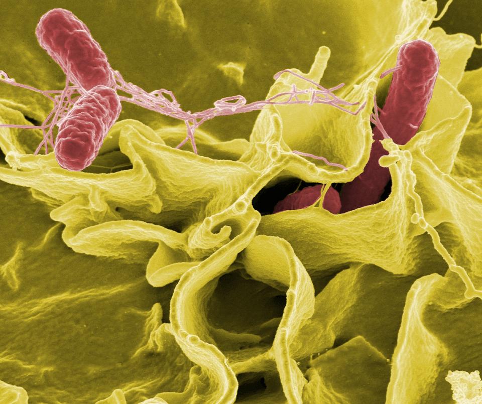 腸内細菌が生成する若返り物質「ポリアミン」が…